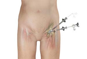Outpatient Hip Replacement