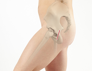 Robotic-Assisted Knee Replacement
