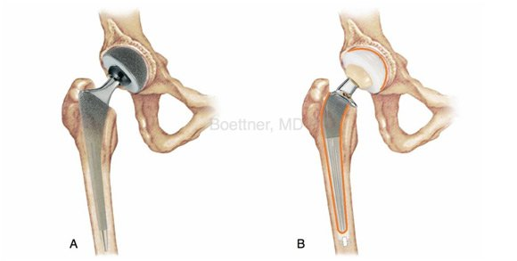 Posterior Hip Replacement Posterior Hip Surgery New York Ny